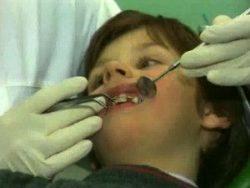причины кривых зубов у детей