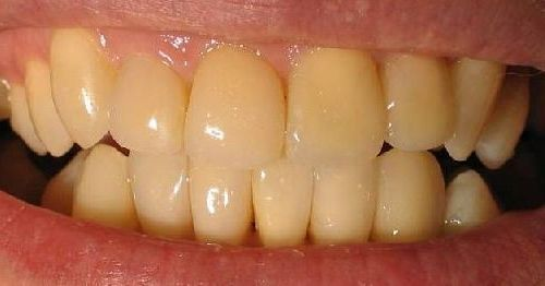 У ребенка коренные зубы желтые почему