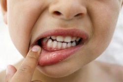 воспаление десны у ребенка